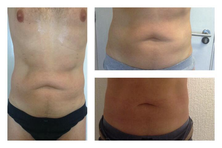 2 Sessions of Cryolipolysis and 6 Sessions of Radio Frequency