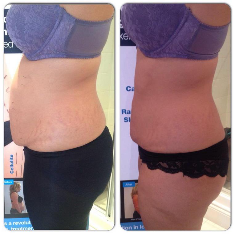 4 treatments of 3D- lipo