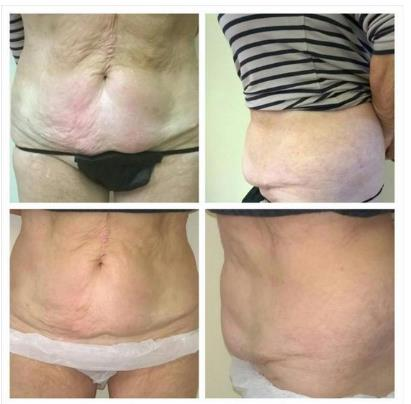 Before & After a course of 3D- lipo