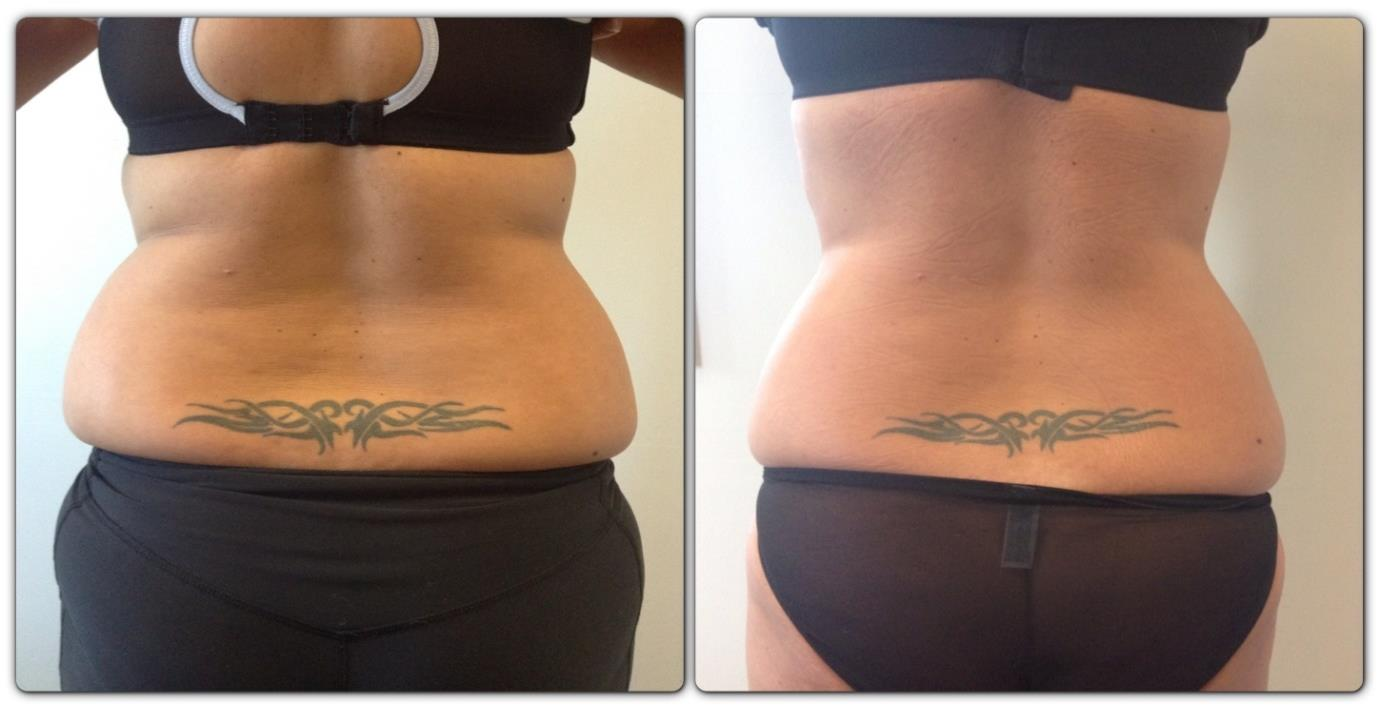Course of 2 Cryolipolysis & 6 Cavitation