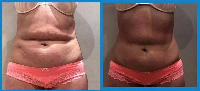 1 treatment of 3D- lipo