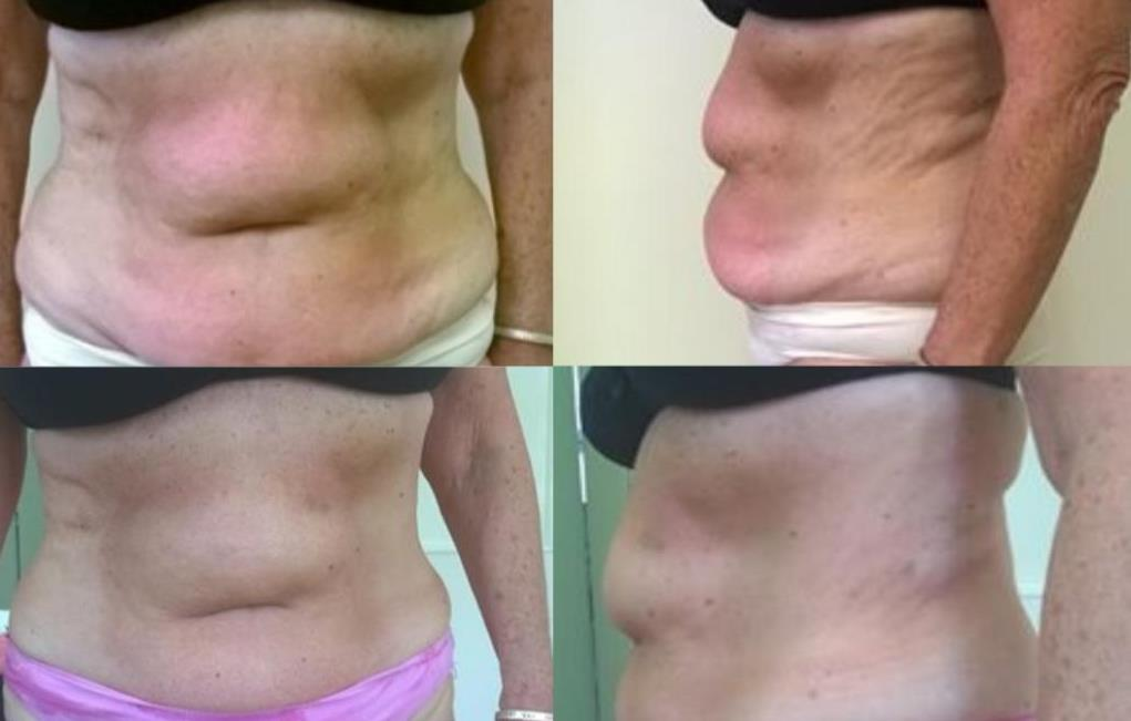 3 Cavitation treatments