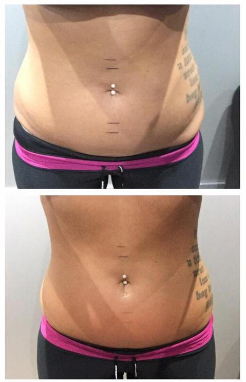 5 Sessions of 3D- lipo