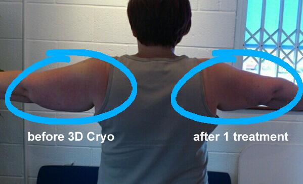 After 1 Session of Cryolipolysis