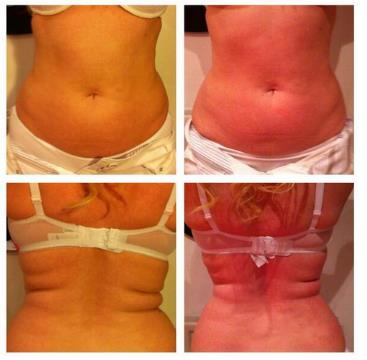 a Cavitation Treatment