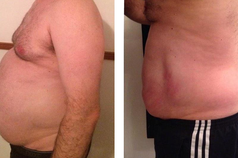 Cavitation Before & After