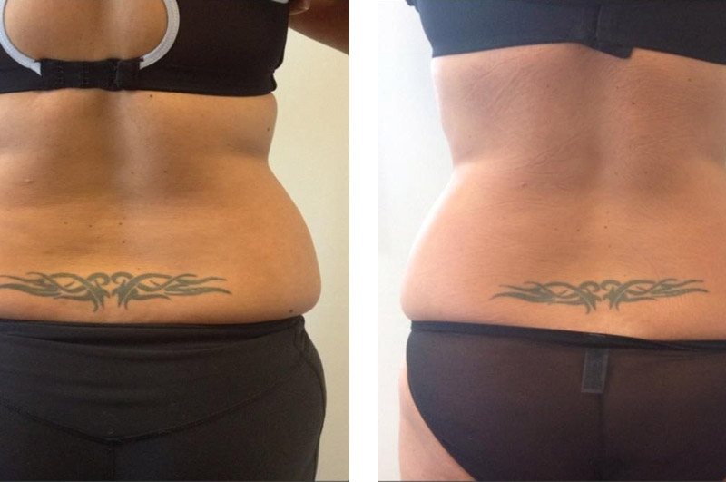 Cryolipolysis Before & After