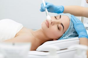skin peel facials York