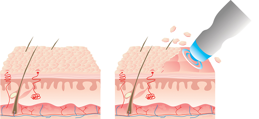 Microdermabrasion Diagram