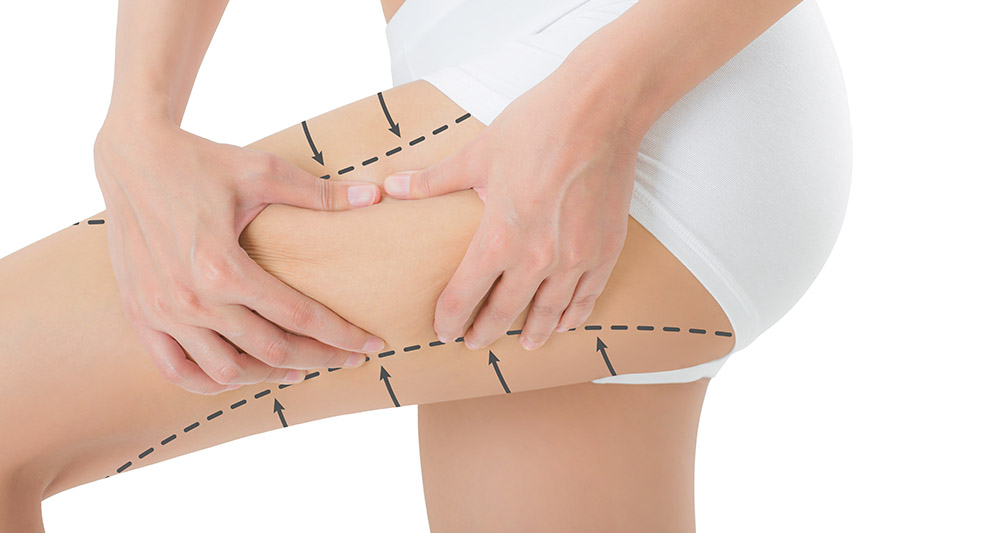 Shockwave Cellulite